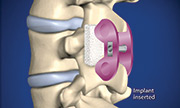 Surgical Options Panama City  spine center and neurosurgery center